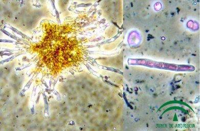 Pseudocercospora cladosporioides