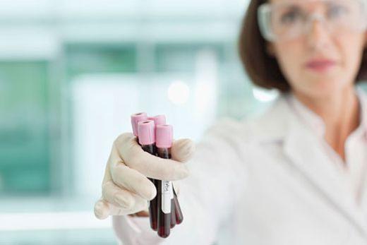 Anemia por deficiencia de hierro en niños